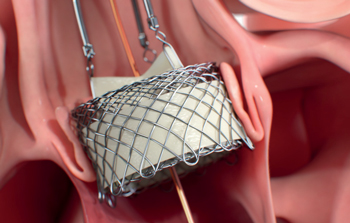 HLT: The Next-generation of TAVR Technology