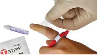 Precision Medical Devices, LLC: Advancing Digit Wound Care