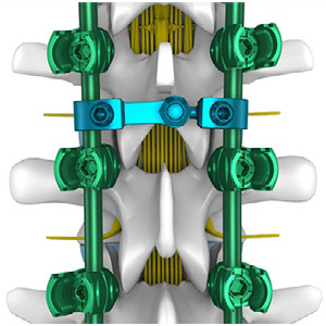 Double Medical Technology: Reinforcing The Human Endoskeleton with Orthopedic Devices