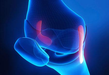 MedShape Launches DynaNail Mini to Assist Orthopedic Surgeons