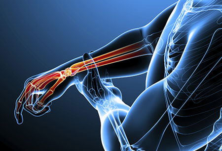 The Major Trends in the Orthopedic Device Market