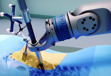 How Can Robots Do Wonders in Orthopedics?