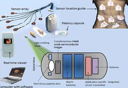 How Capsule Endoscopy Works