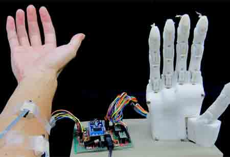 How New Prosthetic Tech Helps Users Control Prosthetic Hand Better