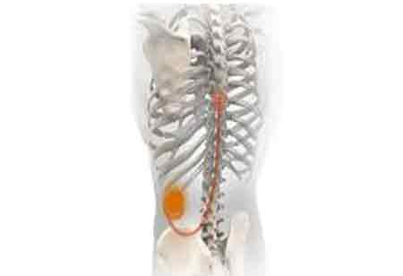 What You Should Know About Spinal Implant