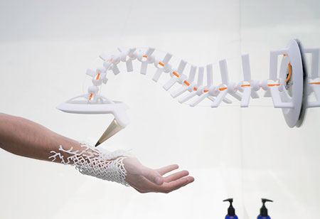 How 3D-Printed Implants Personalize Care