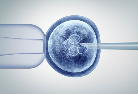 In-Vitro Fertilization Market to Reach $17 Billion by 2025