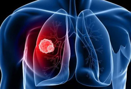 Technology Can Help Facilitate Lung Cancer Prognosis!