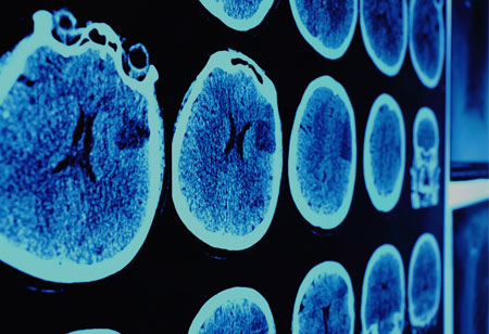Ways AI can Help Advance Oncology Clinical Trials