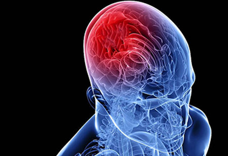 Efforts toward Solving Stroke Treatment Challenges