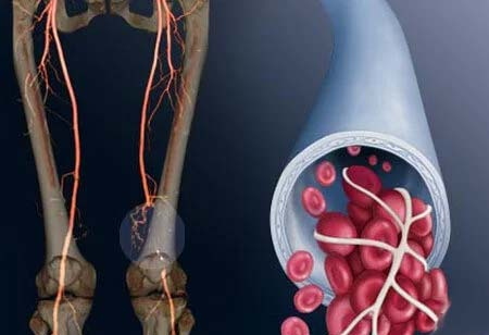 Enhanced Predictability and Reliability in DVT Clot Management