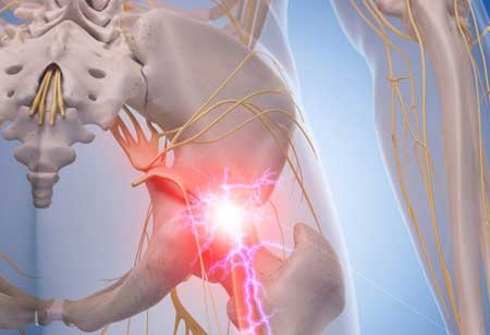 Aiding the Anterior Spine Pain with Vertebral Body Replacement Device