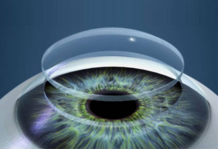 3D-printed Cornea for Preventing Sight Loss